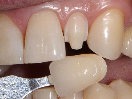 препарирование зуба перед установкой винира