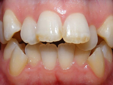пример сложной скученности зубов
