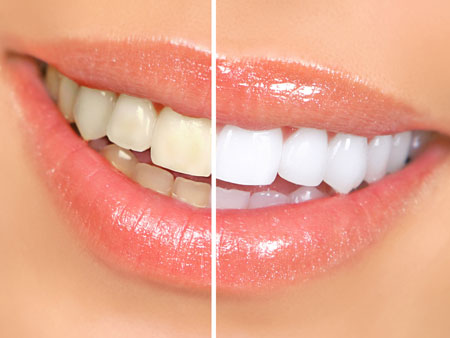 Все о лазерном отбеливании зубов