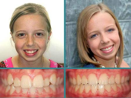 результат лечения скученности зубов у ребенка