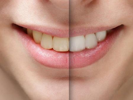 результат отбеливания зубов Beyond