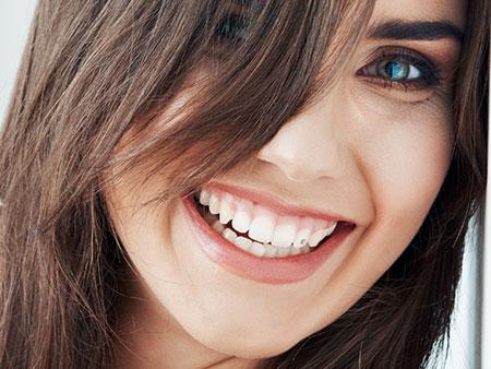 Блестящие скайсы – модное украшение на зубах