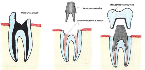схема наращивания зуба со штифтом