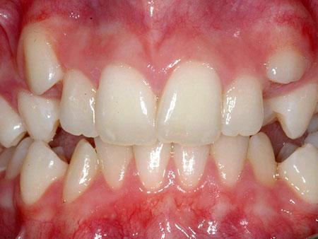 Решение проблемы скученности зубов