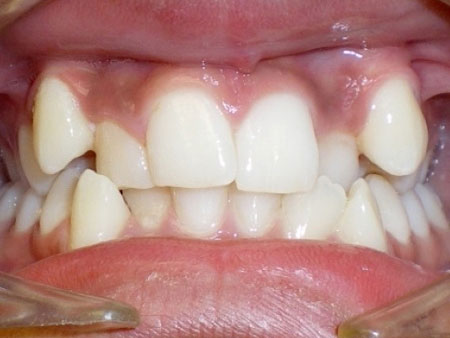 скученный зубной ряд