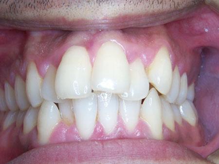 скученный прикус зубов