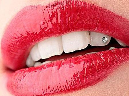 драгоценный камень на зубе