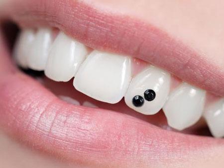две черных стразы на зубе