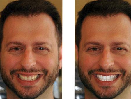 отбеленные зубы мужчины