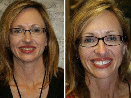 улыбка после отбеливания зубов