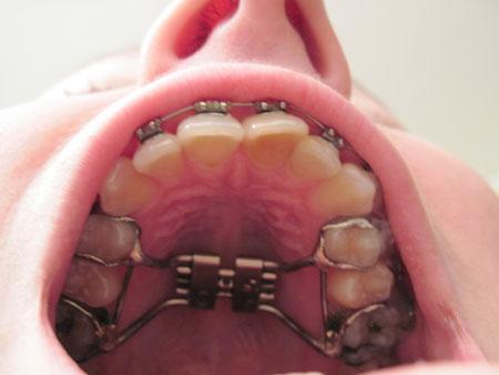Расширение верхней челюсти аппаратом Дерихсвайлера