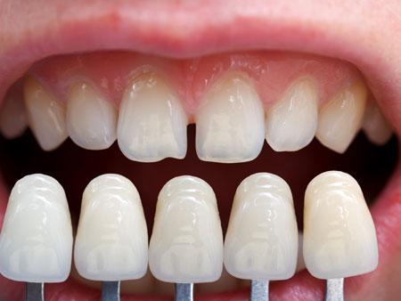 выбор цвета накладок на зубы
