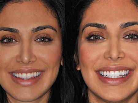 до и после отбеливания зум