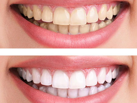 зубы до и после сеанса Zoom