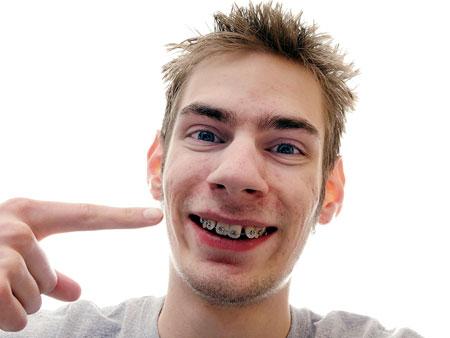 брекеты на кривых зубах