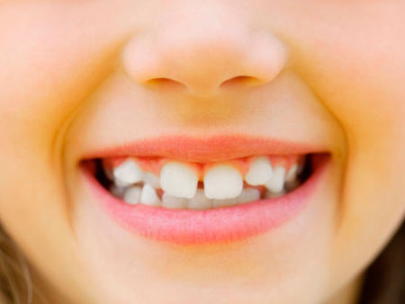 девочка с кривыми зубами
