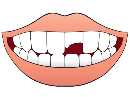 графический зубной скол