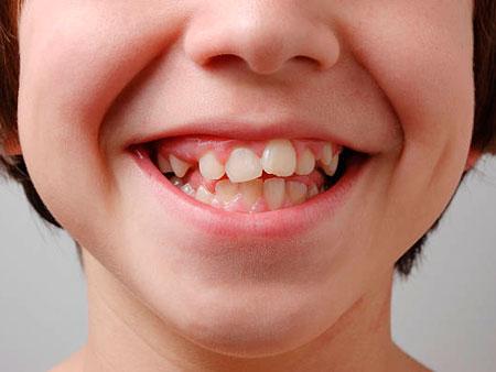искривление молочных зубов