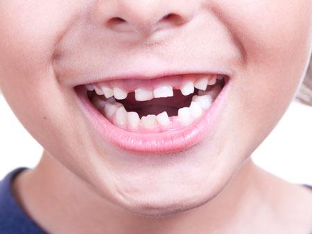 мальчик с неровными молочными зубами