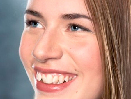неровные зубные ряды
