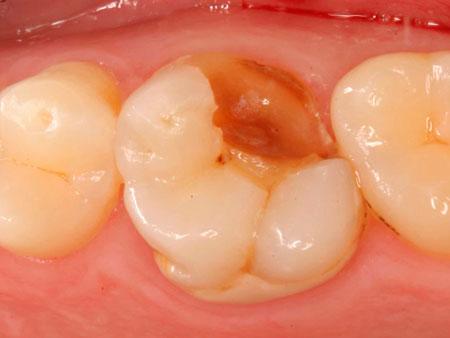 откололся жевательный зуб