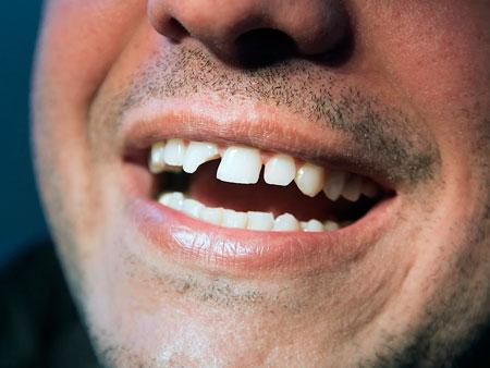 Всё самое важное о проблеме скола зубов