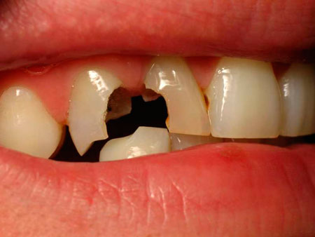 скол зубов и кариес