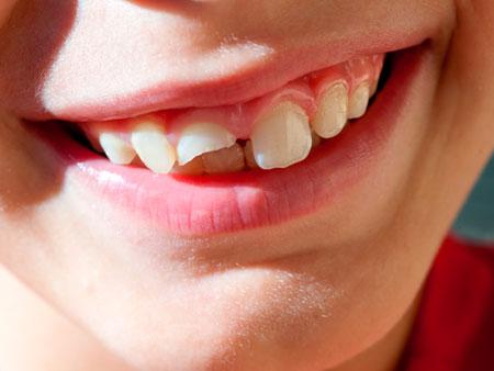 сломанный зуб у ребенка