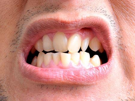 Причины кривых зубов и методы коррекции