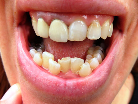 взрослый с очень кривыми зубами