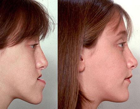 до и после ортогнатической операции