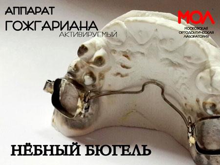 модель небного бюгеля Гожгариана