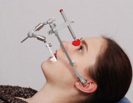 применение лицевой дуги