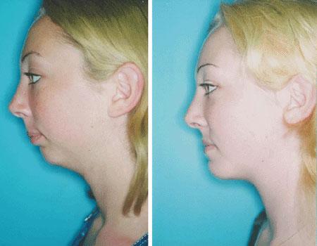 результат ортогнатической хирургии