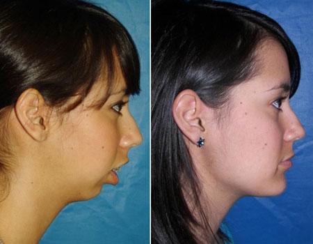результат после ортогнатической операции