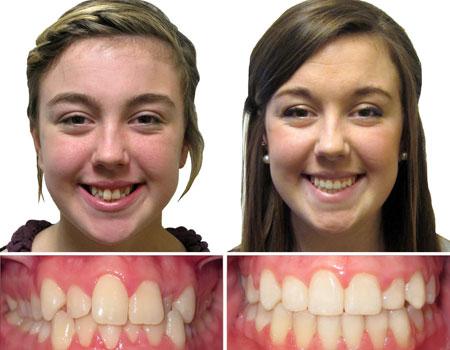 результаты расширения челюсти