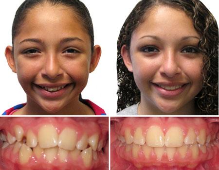 зубы после расширения челюсти