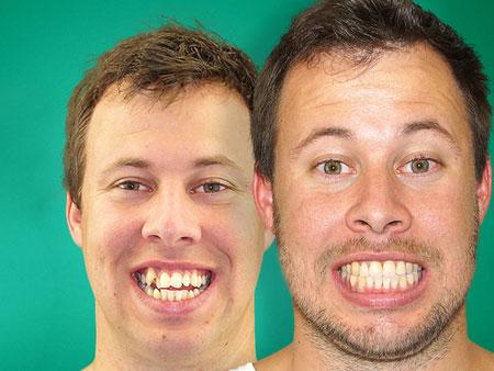Способы расширения челюсти у детей и взрослых