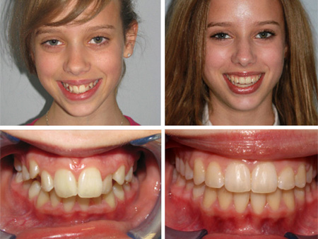 до и после лечения брекет-системами