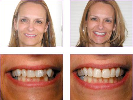 до и после лечения системой In-Ovation