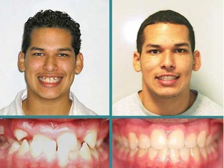 до и после устранения серьезной патологии
