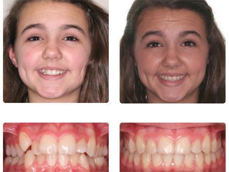 исправление расположения зубов у девочки