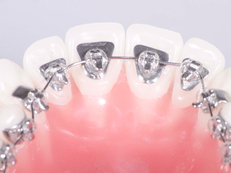 фиксация лингвальных брекетов на зубах