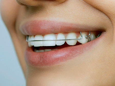 съемная пластинка на зубах