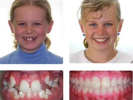 улыбка до и после лечения брекетами
