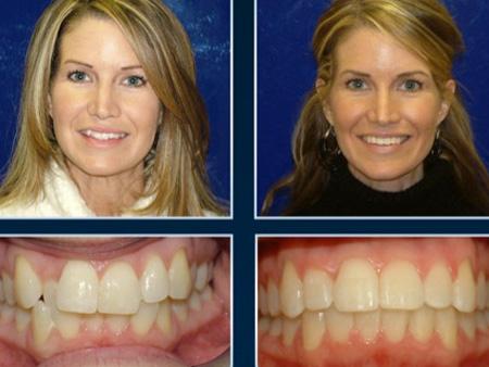 улыбка взрослой женщины до и после брекетов