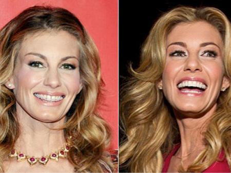 улыбка женщины после снятия брекетов
