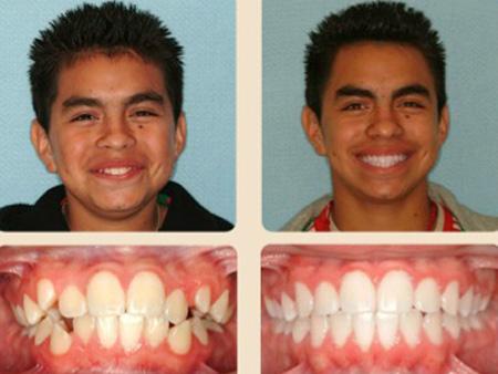 зубы до и после лечения брекетами