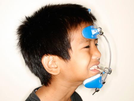 Функции лицевых масок в ортодонтии