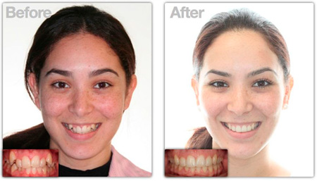 до и после лечения Invisalign
